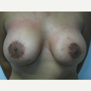 Breast Lift after 3055107