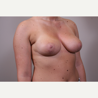 18-24 year old woman treated with Breast Reduction after 3769567