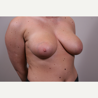 18-24 year old woman treated with Breast Reduction before 3769567