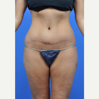 25-34 year old woman treated with Tummy Tuck after 3449711