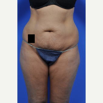 25-34 year old woman treated with Tummy Tuck before 3449711