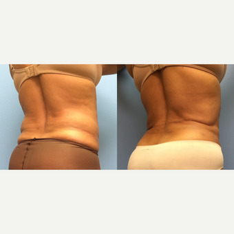 62 year old woman treated with Liposuction of the abdomen and waist before 3174530