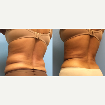 62 year old woman treated with Liposuction of the abdomen and waist after 3174530