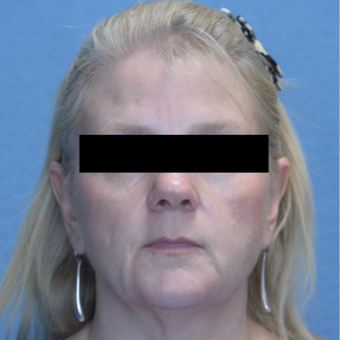 45-54 year old woman treated with Voluma & Juvederm after 3293206