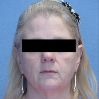 45-54 year old woman treated with Voluma & Juvederm before 3293206