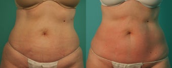 Female treated for Cellulite and Body Contouring