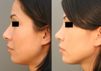 Beverly HIlls/Los Angeles Primary Rhinoplasty before 642696