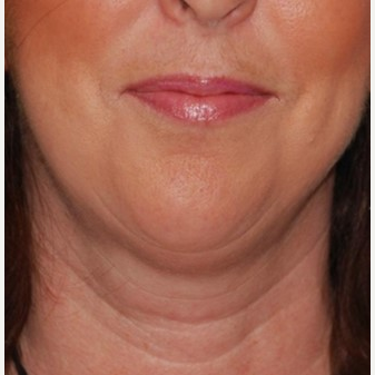 35-44 year old woman treated with Chin Implant & Neck Lift before 3649796