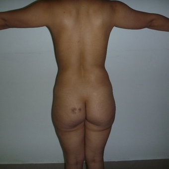 25-34 year old woman treated with Brazilian Butt Lift before 3266367