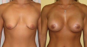 Trans Axillary Breast Augmentation With no Breast Scars before 1364650
