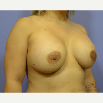 25-34 year old woman treated with Breast Augmentation after 3386408