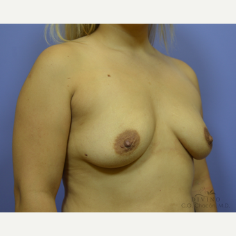 25-34 year old woman treated with Breast Augmentation before 3386408