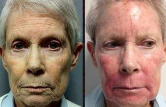 70+ Year Old Female Treated for Pigment, Texture and Wrinkles before 1198947