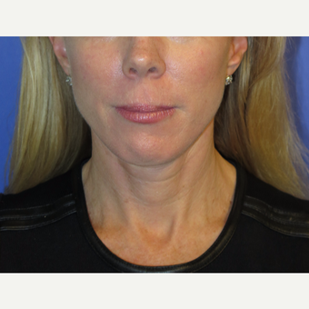 47 year old woman treated with Neck Lift after 3054211