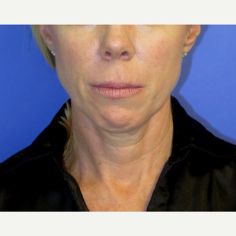 47 year old woman treated with Neck Lift before 3054211