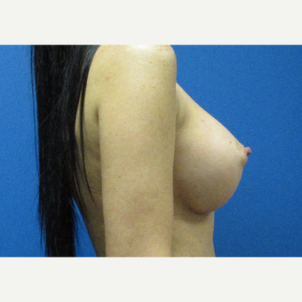 400cc high profile breast implants after 3697349