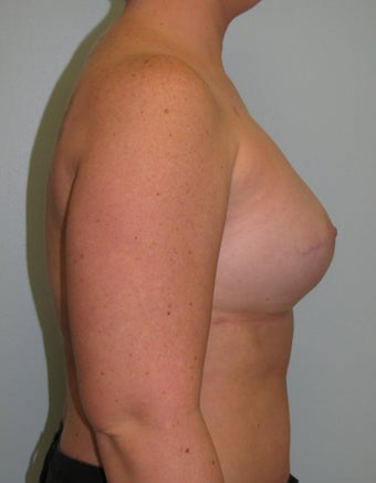25-34 year old woman treated with Breast Reconstruction 3104593
