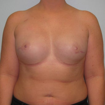 25-34 year old woman treated with Breast Reconstruction after 3104593