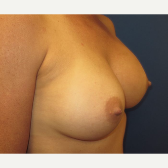 25-34 year old woman treated with Breast Implants after 3669900