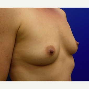 25-34 year old woman treated with Breast Implants before 3669900