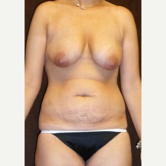 25-34 year old woman treated with Mommy Makeover before 2062408