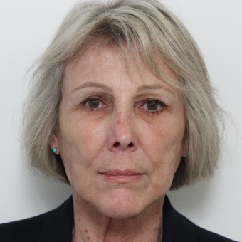 65-74 year old woman treated with Facelift after 3617256