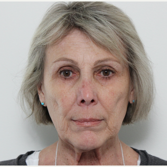 65-74 year old woman treated with Facelift before 3617256