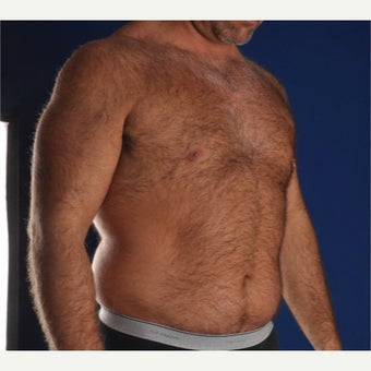 35-44 year old man treated with Liposculpture