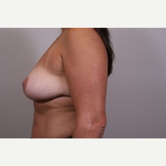35-44 year old woman treated with Breast Reduction after 3769559