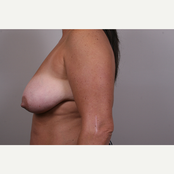 35-44 year old woman treated with Breast Reduction before 3769559