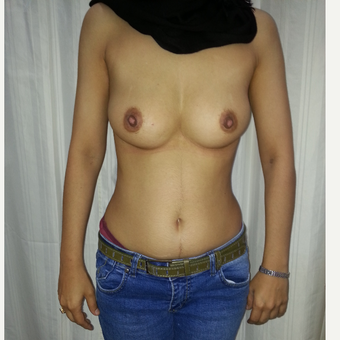 35-44 year old woman treated with Oncoplastic Breast Reconstruction before 3317262
