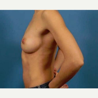 25-34 year old woman treated with Breast Augmentation before 3786957