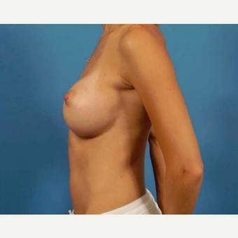 25-34 year old woman treated with Breast Augmentation after 3786957