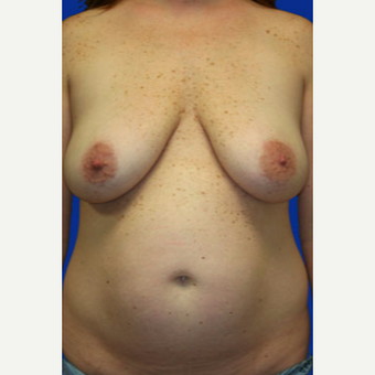 35-44 year old woman treated with Mommy Makeover before 3519791