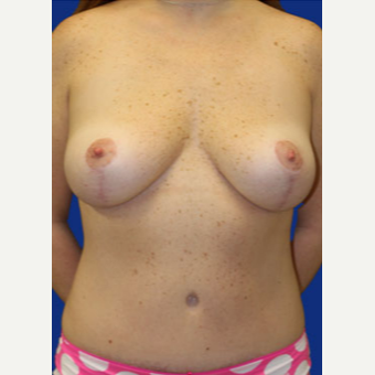 35-44 year old woman treated with Mommy Makeover after 3519791
