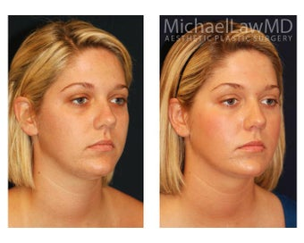 Chin Liposuction before 1256344