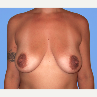 35-44 year old woman treated with Breast Lift with Implants before 3748643