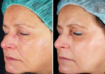 Fractional Laser Skin Resurfacing before 69338