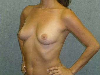 Breast augmentation with fat transfer 607414