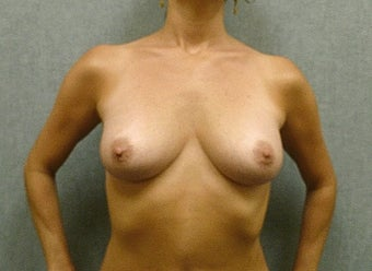 Breast augmentation with fat transfer after 607414