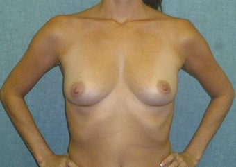 Breast augmentation with fat transfer before 607414