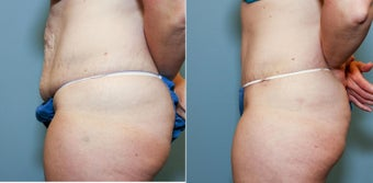 37 year old after mini tummy tuck 718510