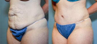 37 year old after mini tummy tuck after 718510