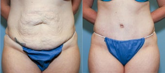 37 year old after mini tummy tuck before 718510
