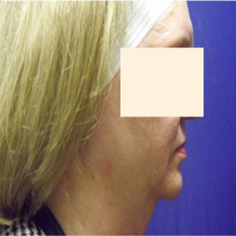 57 year old woman treated with CoolSculpting before 2853704