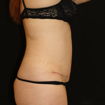35-44 year old woman treated with Tummy Tuck 1900093