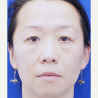 35-44 year old woman treated with Ptosis Surgery after 3727818