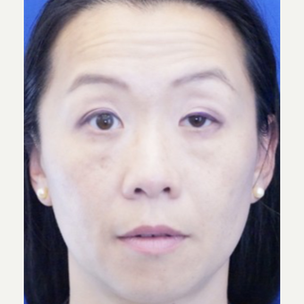 35-44 year old woman treated with Ptosis Surgery before 3727818