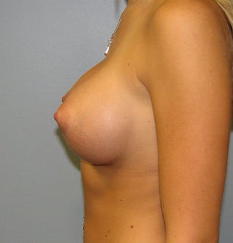 Breast Augmentation Saline 360cc B to a Full C Cup after 129497