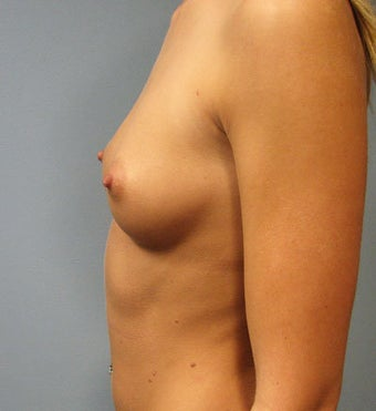 Breast Augmentation Saline 360cc B to a Full C Cup before 129497
